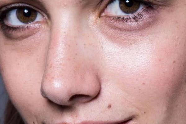 olheiras avermelhadas