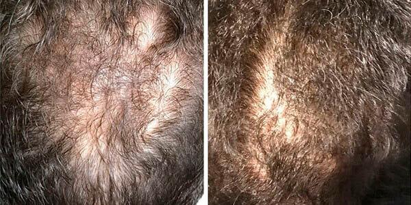 mmp no tratamento da queda de cabelo
