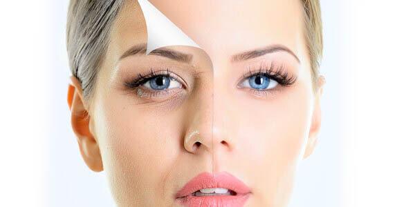 preenchimento facial olheiras