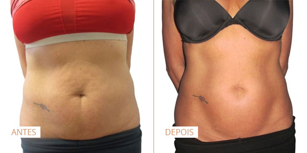 laser legacy antes e depois abdominal