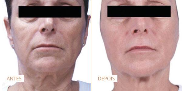 laser venus legacy antes e depois facial