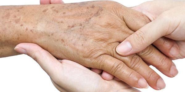 manchas nas mãos