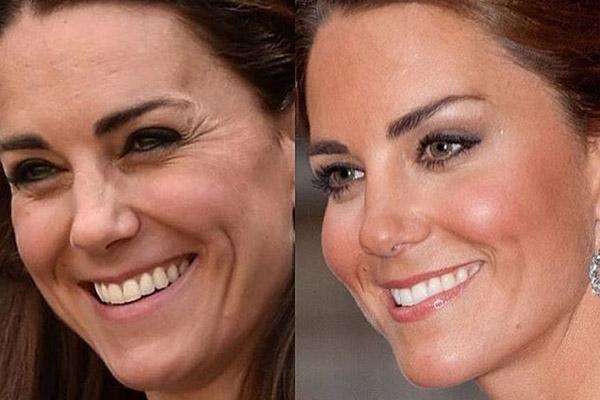 harmonização facial de famosas - kate-middleton