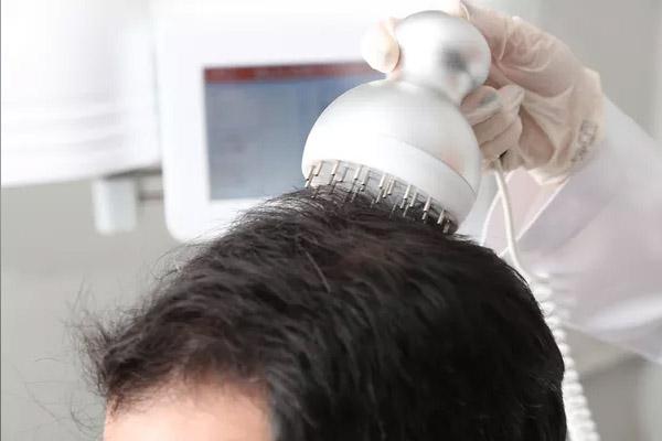 bulge hair restoration microcorrente
